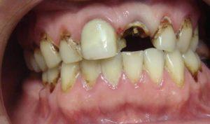 восстановить разрушенный зуб микропротезирование