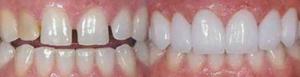 Стоматология в Балашихе Зубные врачи в Балашихе