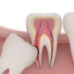 Удаление зуба мудрости. Зуб мудрости подлежит удалению