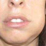 Флюс : лечение флюса на десне и на щеке