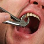 Лечение зубов в Балашихе. Удаление зуба