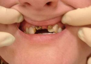 Удаленный и разрушенный зуб. Необходимо наращивание и восстановление зубов