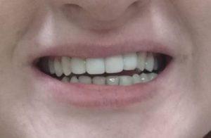 Наращивание зубов результаты эстетической реставрации. Балашиха.