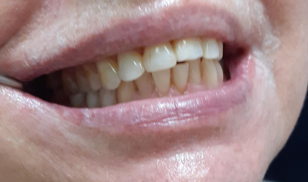 Поднятие прикуса важная часть лечения зубов