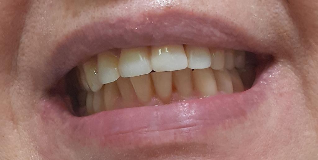 Сохранить зубы подняв прикус