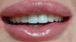 Исправить кривые зубы